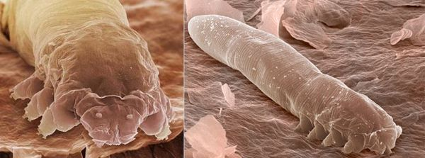 Клещ демодекс (Demodex folliculorum)
